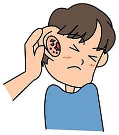 耳 掃除 だけ 耳鼻 科